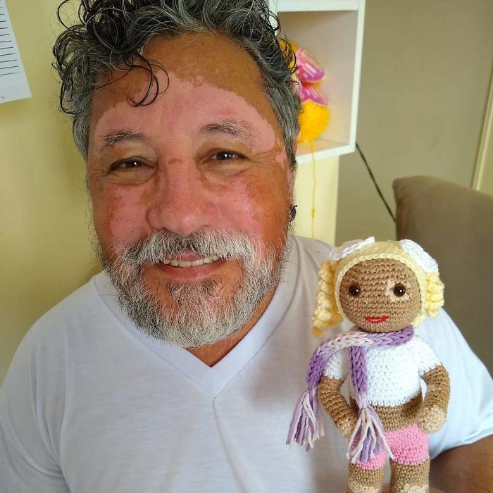 Vitiligo Doll